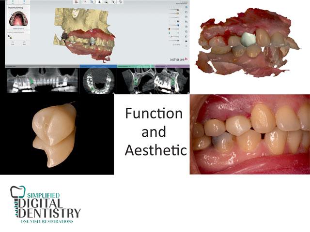 فاکتور های زیبایی در ایمپلنت دندان