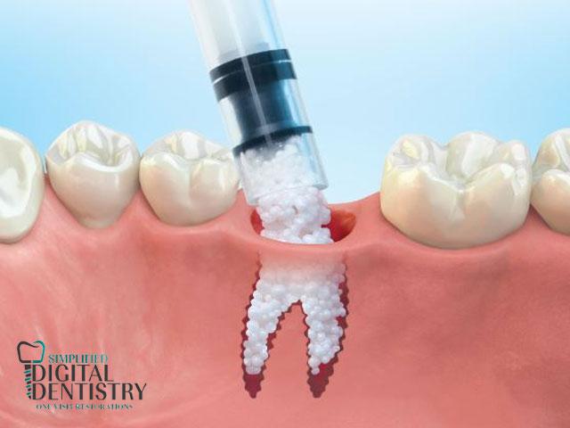 پیوند استخوان در دندانپزشکی