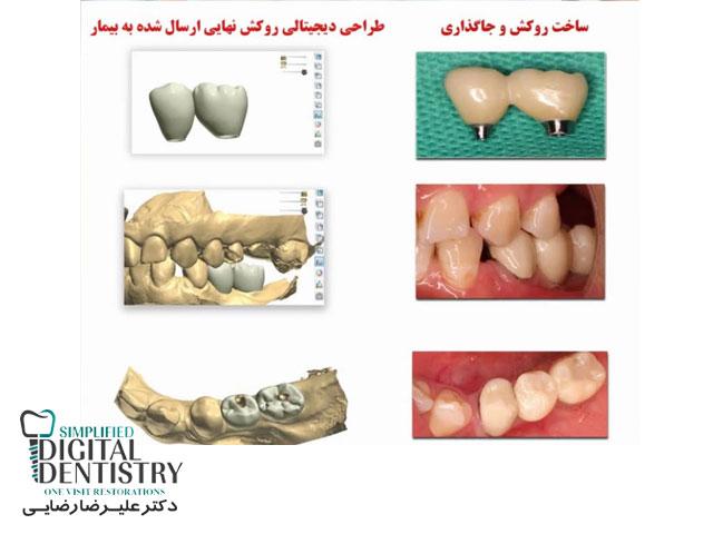 مرکز دندانپزشکی دیجیتال - طراحی دیجیتالی روکش نهایی ارسال شده به بیمار